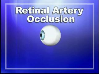 retinalartery
